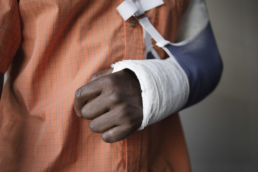 Broken Arm - Fort Smith, AR Motorcycle Accident Attorney