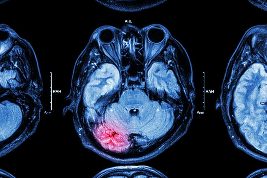 bigstock MRI of brain brain injury 81523415 - Can I Qualify for SSD with a Stroke?
